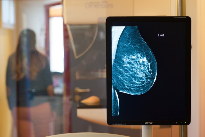 Искусственный интеллект научился распознавать рак лучше экспертов