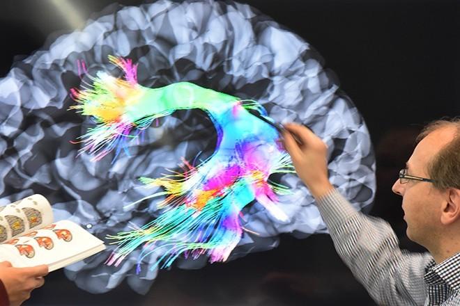 Учёные выяснили, как размер мозга влияет на уровень интеллекта