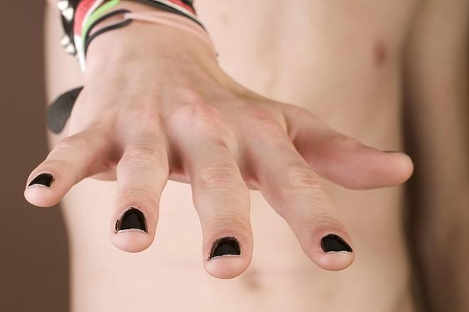 Привычка грызть ногти обернулась для мужчины смертельной инфекцией