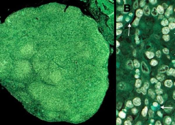 Мутация помешала клеткам тимуса воспитать лимфоциты