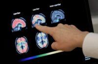 Мифы о болезни Альцгеймера