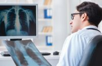 Рак легких можно обнаружить по состоянию пальцев