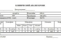 Как расшифровать общий анализ крови: норма показателей
