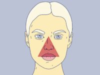 Как выдавить прыщ, чтобы не оставить шрам и не занести инфекцию