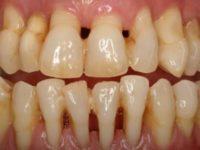 Как вовремя заметить пародонтоз и не потерять зубы