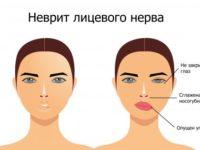 Что такое неврит лицевого нерва и как его лечить