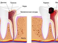 Что нужно знать о пульпите, чтобы сохранить здоровье зубов