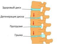 Что такое протрузия межпозвонкового диска и как её лечат